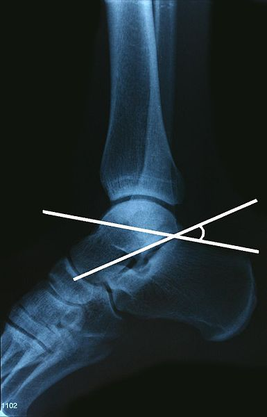 occult fractures and dislocations