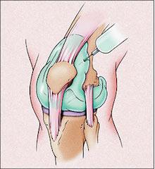 Acute-Monoarthritis