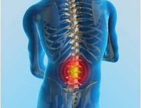 Low Back Pain Emergencies