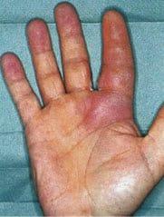 flexor tenosynovitis