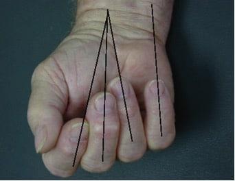 Hand Emergencies | Emergency Medicine Cases