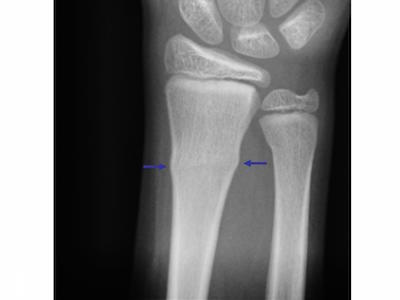 pediatric orthopedic pearls and pitfalls