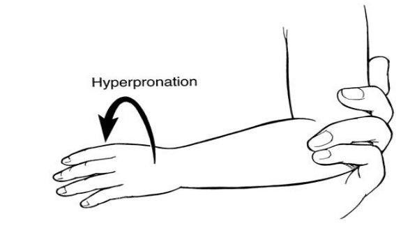nursemaid elbow hyperpronation
