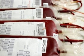 Transfusions Anticoagulants and Bleeding
