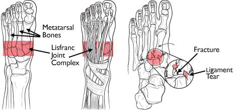 Lisfranc-commonly-missed-uncommon-orthopedic-injuries