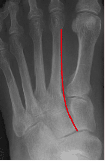 normal-Lisfranc-alignment