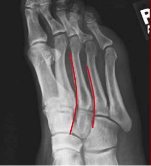 normal-alignment-Lisfranc-oblique