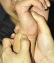 ulnar-fovea-sign