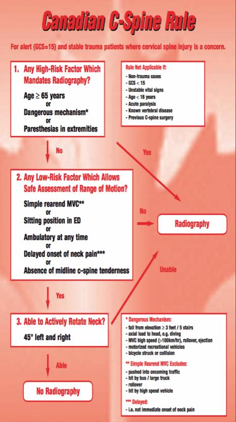 Canadian-C-Spine-Rule