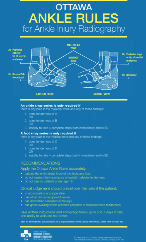 Ottawa-Ankle-Rules