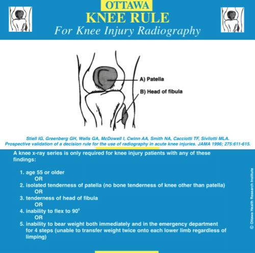 Ottawa-Knee-Rule