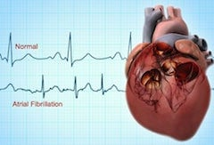 Atrial-Fibriallation