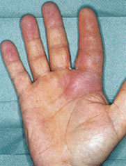 hand emergencies