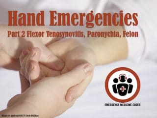 hand emergencies
