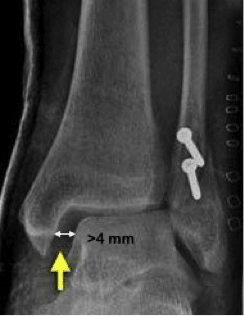 increased medial clear space
