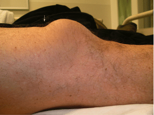 suprapatellar gap