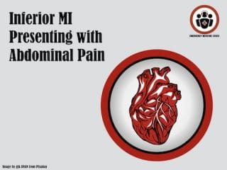inferior MI presenting with abdominal pain