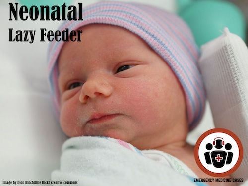 neonatal lazy feeder