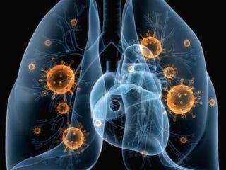 septic shock with pneumonia