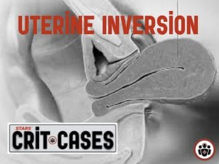 Uterine Inversion