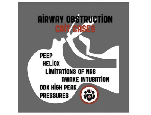CritCases 6 – Airway Obstruction