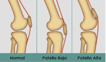 knee injuries pearls and pitfalls