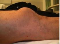 knee injuries pearls and pitfalls
