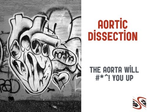 Episode 92 – Aortic Dissection Live from The EM Cases Course