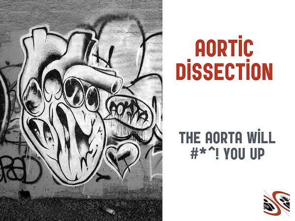 Aortic Dissection Live from The EM Cases Course