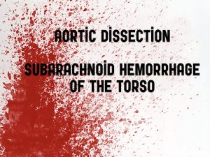 aortic dissetion live at the em cases course