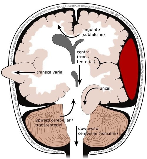 pediatric cerebral herniation