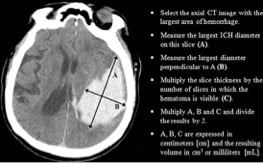 emergency management of intracerebral hemorrhage