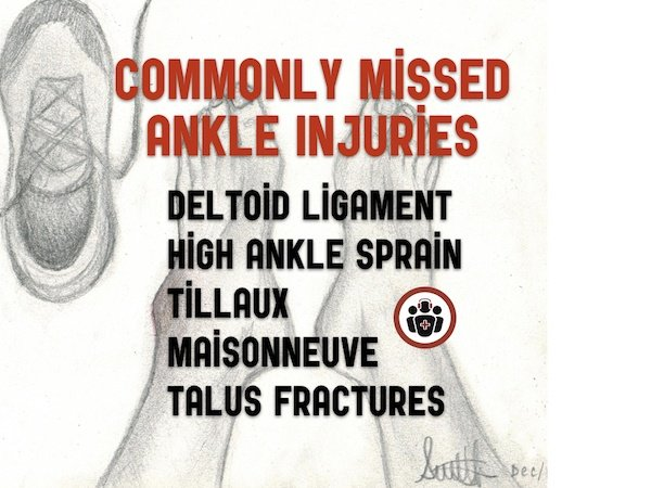 Episode 105 Commonly Missed Ankle Injuries