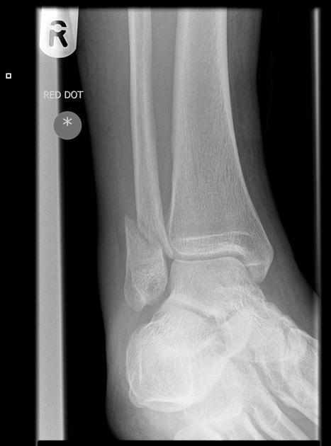 Commonly Missed Ankle Injuries | Emergency Medicine Cases