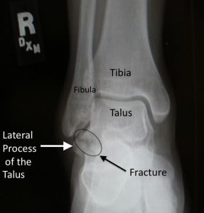 Commonly Missed Ankle Injuries | Emergency Medicine Cases | EM Cases