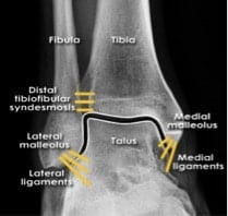 commonly missed ankle injuries