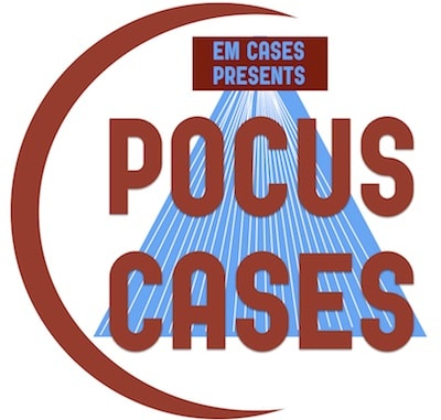 POCUS Cases Video Series has Launched!