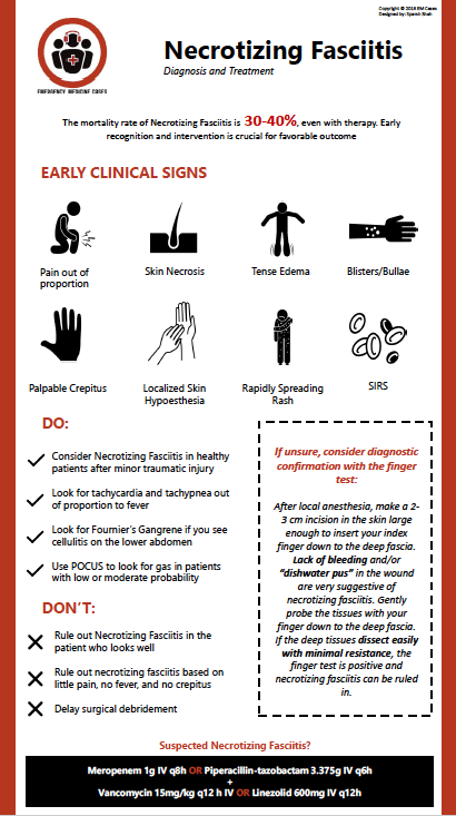 necrotizing fasciitis infographic