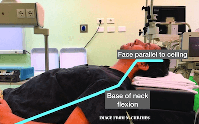 airway pitfalls live from emu 2018
