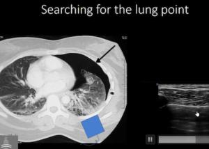 POCUS Cases pneumothorax