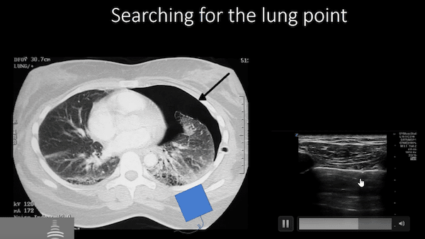 POCUS Cases pneumothorax