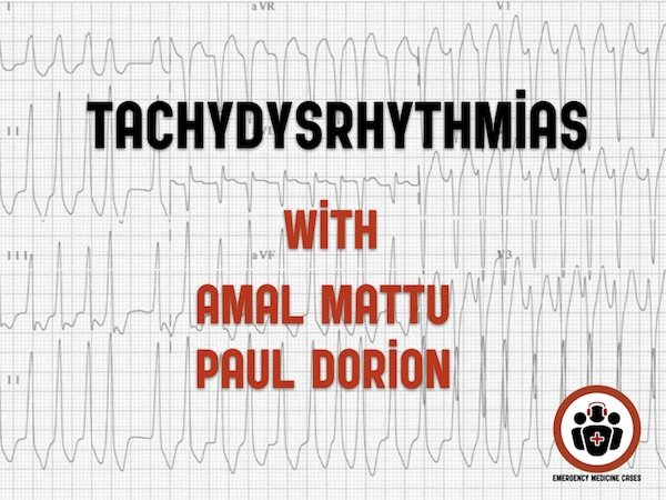 Ep 112 Tachydysrhythmias with Amal Mattu and Paul Dorion