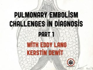 pulmonary embolism challenges in diagnosis