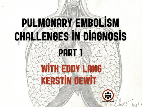 Ep 113 Pulmonary Embolism Challenges in Diagnosis Part 1