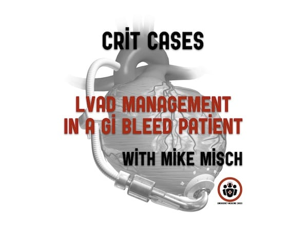 CritCases 11 LVAD Management in the GI Bleed Patient