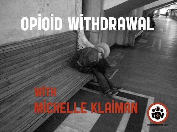 BCE 76 Opioid Withdrawal