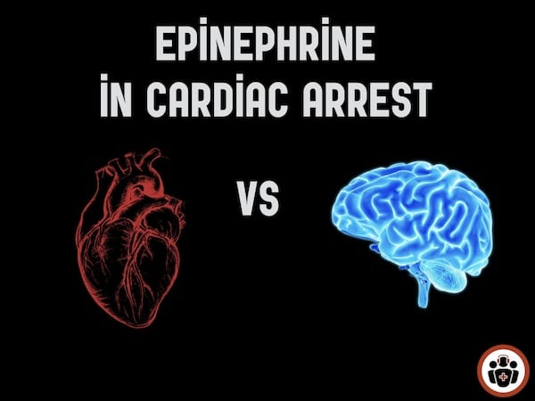 Epinephrine Cardiac Arrest