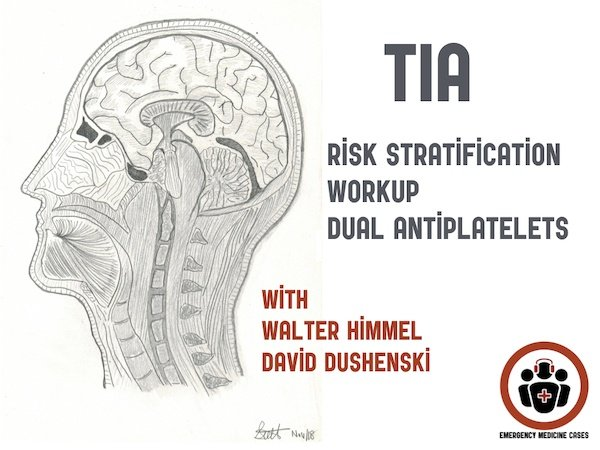 Ep 117 TIA Update – Risk Stratification, Workup and Dual Antiplatelet Therapy