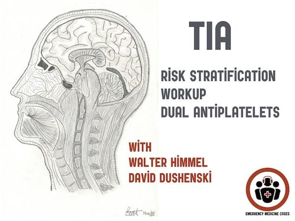 TIA Update - Risk Stratification, Workup, Dual Antiplatelet