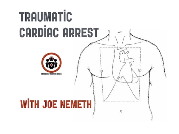 BCE 78 Traumatic Cardiac Arrest